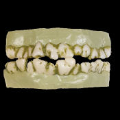 Realistic Scary Moldy Rotting Cosplay-ZOMBIE MONSTER DENTURES Horror Teeth - Cheap Halloween Freddy Krueger GHOUL - Living Undead Walking Dead Costume Prosthetic Accessory. Easy to wear character teeth. One size fits all.